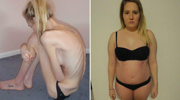 anorexia-corpo-antes-depois-australia-2