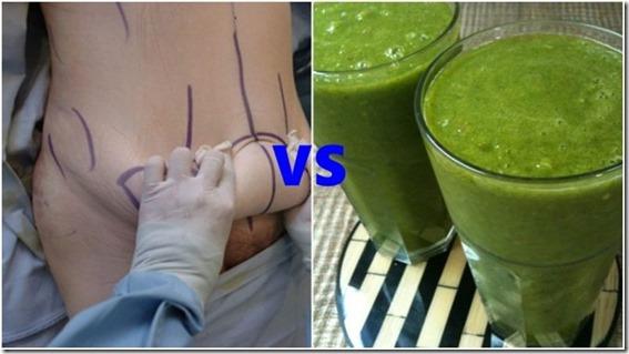 liposuccion vs aldegar natural